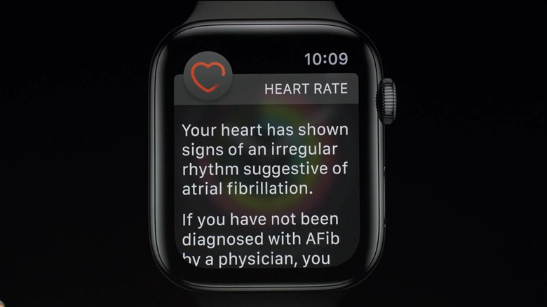 05-applewatch4-electrocardiogram
