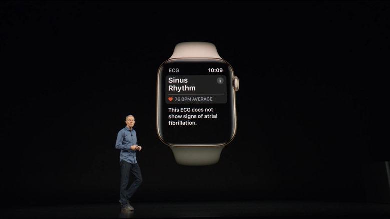 17-applewatch4-electrocardiogram