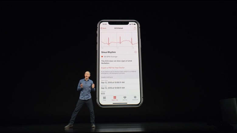 19-applewatch4-electrocardiogram