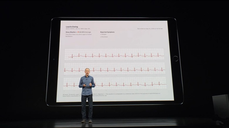 20-applewatch4-electrocardiogram